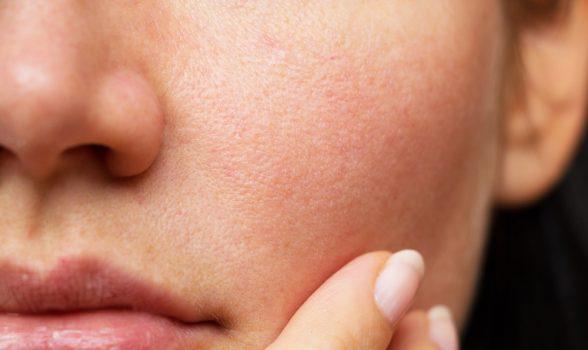 Top 3 Skin Concerns